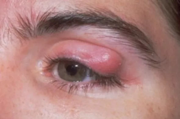 Chalazion Surgery in London