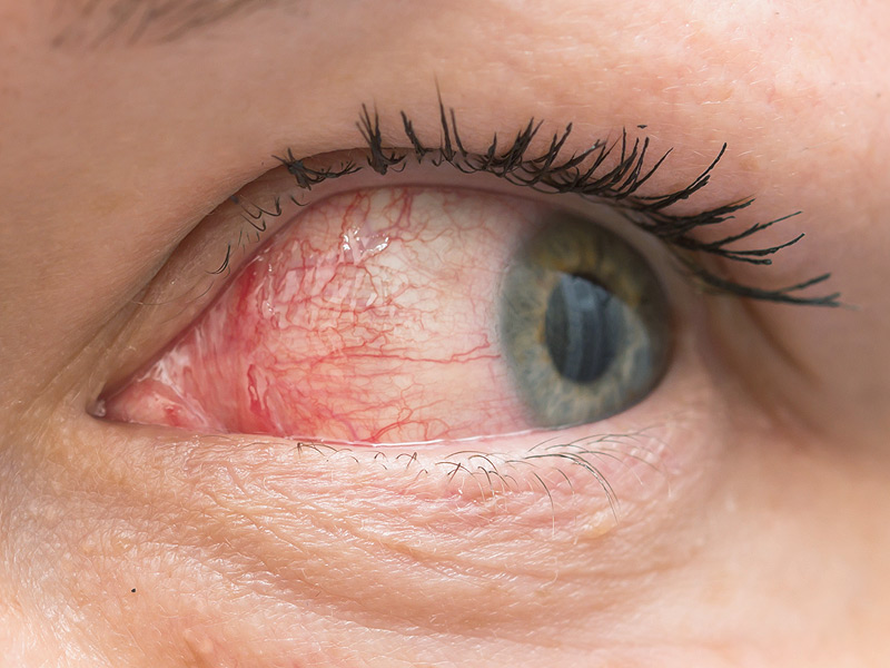 Dry Eye Syndrome Treatment in London