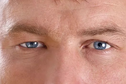 Ptosis Surgery for a Droopy Eyelid